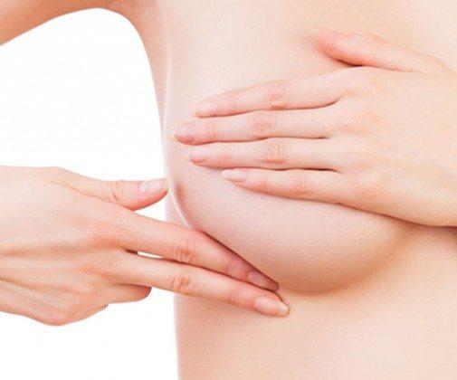Auf dem Bild zu sehen ist das gewünschte Ergebnis einer Bruststraffung für eine weibliche Patientin